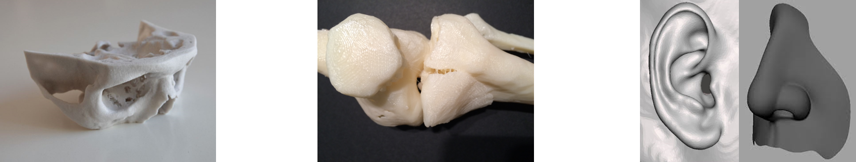 3d print tibia ear nose 1
