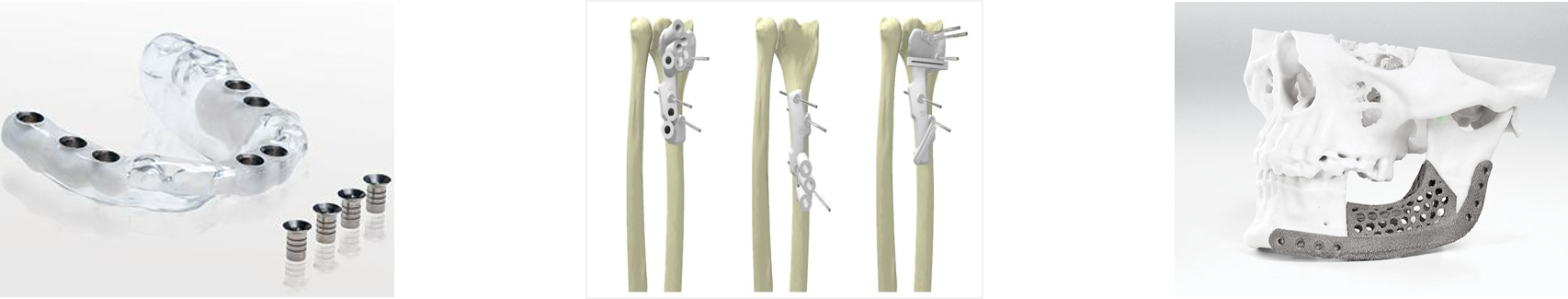3d printed surgical guides 2