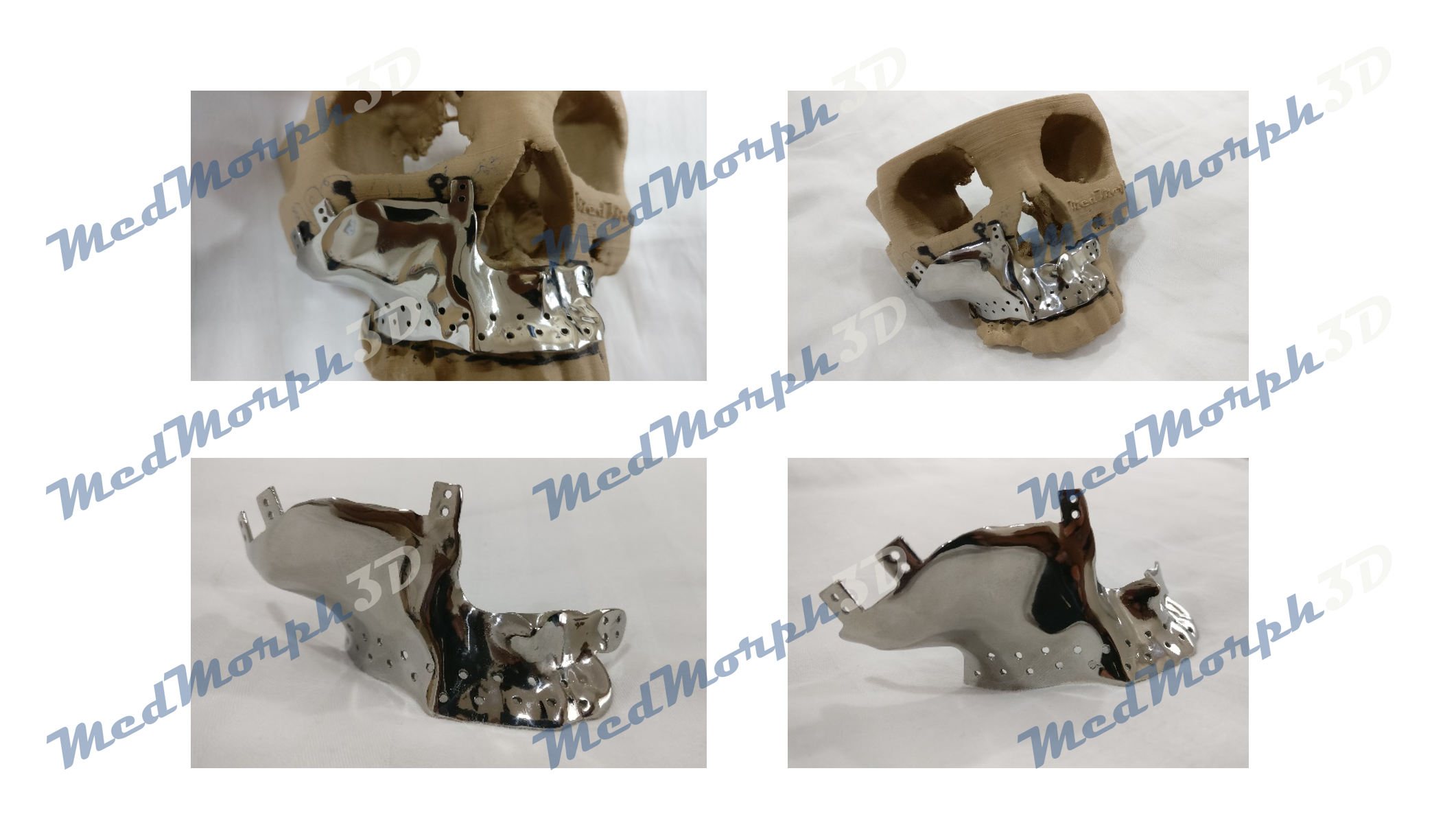 customized metal implant